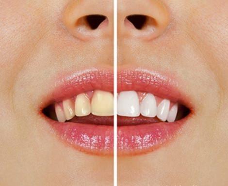 trucos caseros para blanquear los dientes