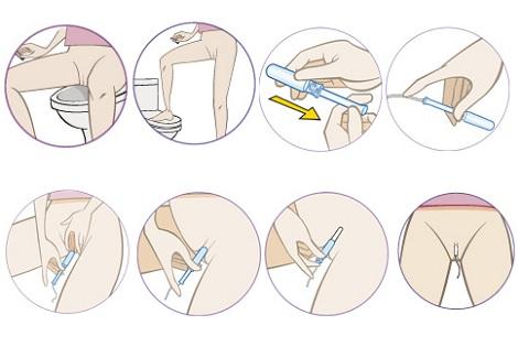 instrucciones para colocarse un tampón