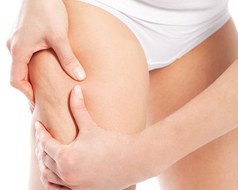 remedios caseros eliminar celulitis
